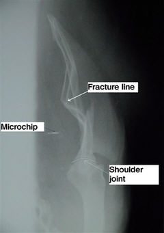 X-ray: View showing fracture line