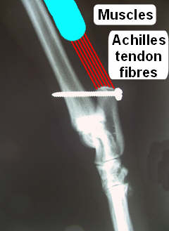X-ray: Attachmentn point for achilles tendon fibres connecting to the muscles